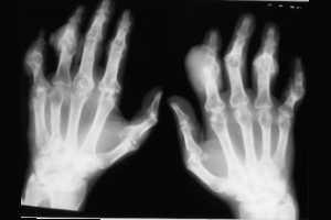 que tomar para la gota natural acido urico en zona metarsiana del pie que frutas puedo comer para bajar el acido urico