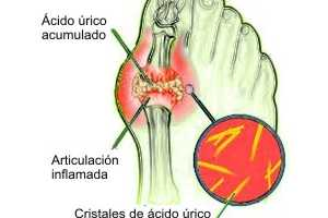 dieta para subir acido urico