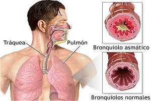 problemas acido urico alto quem tem acido urico pode comer carne vermelha eliminar acido urico con agua