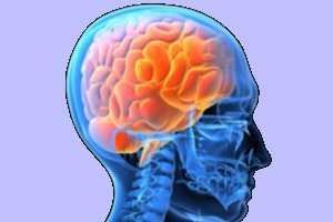 Imagen ilustrativa del artículo Cúrcuma, un Reconstituyente Cerebral después de un ACV