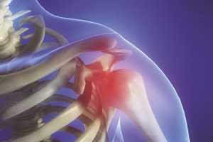 dieta para eliminar acido urico como bajar los niveles de acido urico