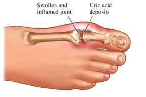 El ungüento la radiculitis lumbar el tratamiento
