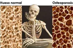 Cómo prevenir o tratar la Osteoporosis