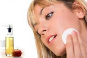 Vinagre para el acne
